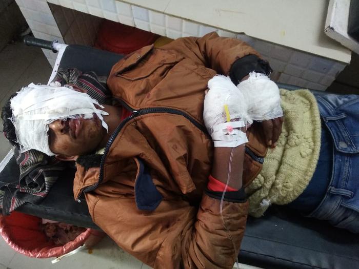 बिलारी : जनता इंटर कॉलेज रुस्तम नगर सहसपुर के सामने आमने सामने की बाइक से टक्कर में छात्र घायल सीएचसी बिलारी भेजा गया वहां प्राथमिक चिकित्सा देकर जिला अस्पताल किया गया रेफर