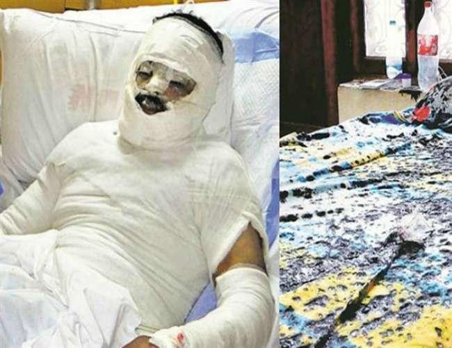 मुजफ्फरनगर में प्रेमी दिलशाद पर तेजाब से हमला कर प्रेमिका महनाज फरार,